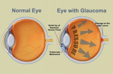 Glaucoma: Prevention And Treatment