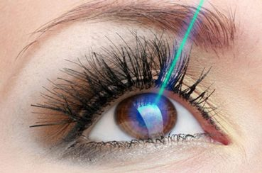 SupraLASIK: The New Way For Vision Correction