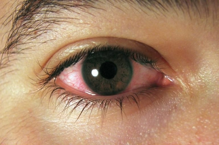 Be aware of Uveitis!
