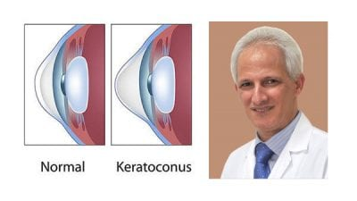 Five Treatment Options For Keratoconus